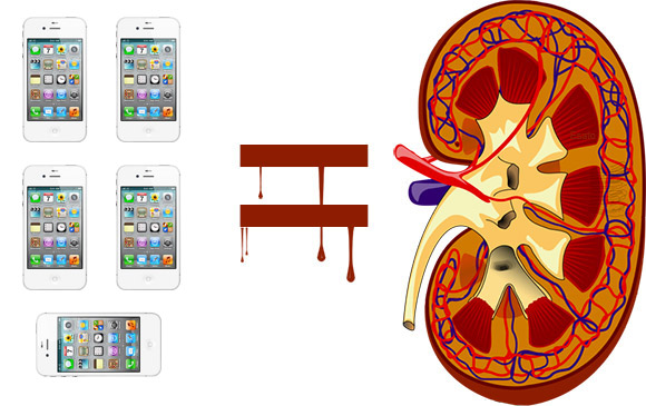 Chinese kid sells kidney to buy an iphone